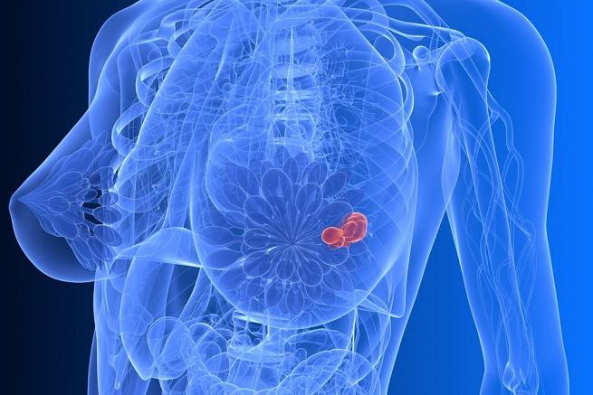 profilaktika-raka-grudi.jpg
