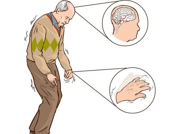 болезнь паркинсона симптомы и признаки у пожилых
