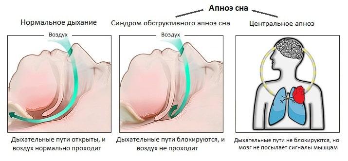 Апноэ после инсульта