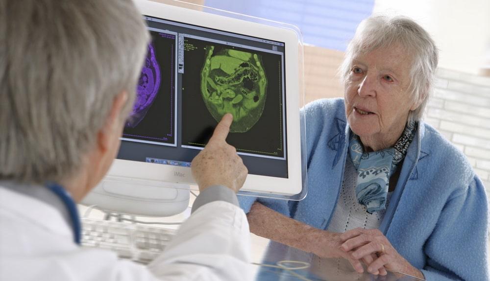 Болезнь Альцгеймера - лечение