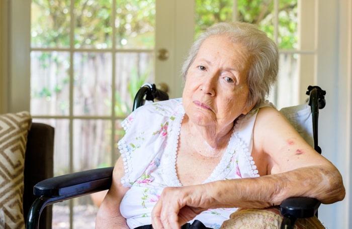 признаки болезни Альцгеймера у женщин