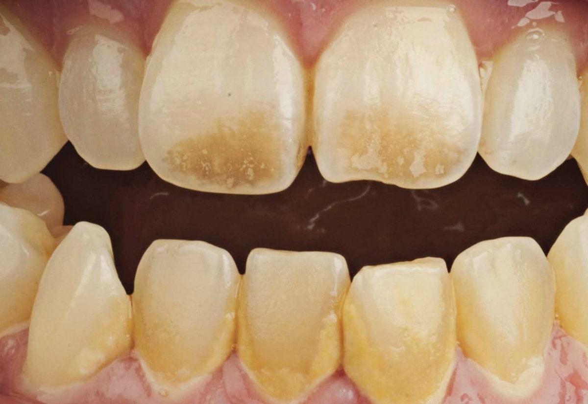 zubnoj-nalet-insult.jpg