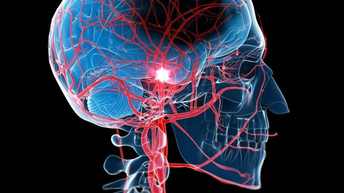 anomalii-sosudov-mozga.jpg