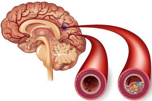 Атеросклеротическое поражение мозга