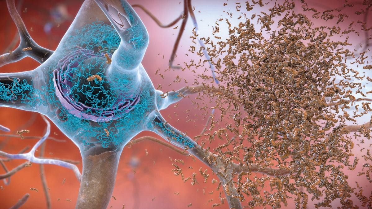 razrushenie-sinapsov-pri-bolezni-alczgejmera.jpg