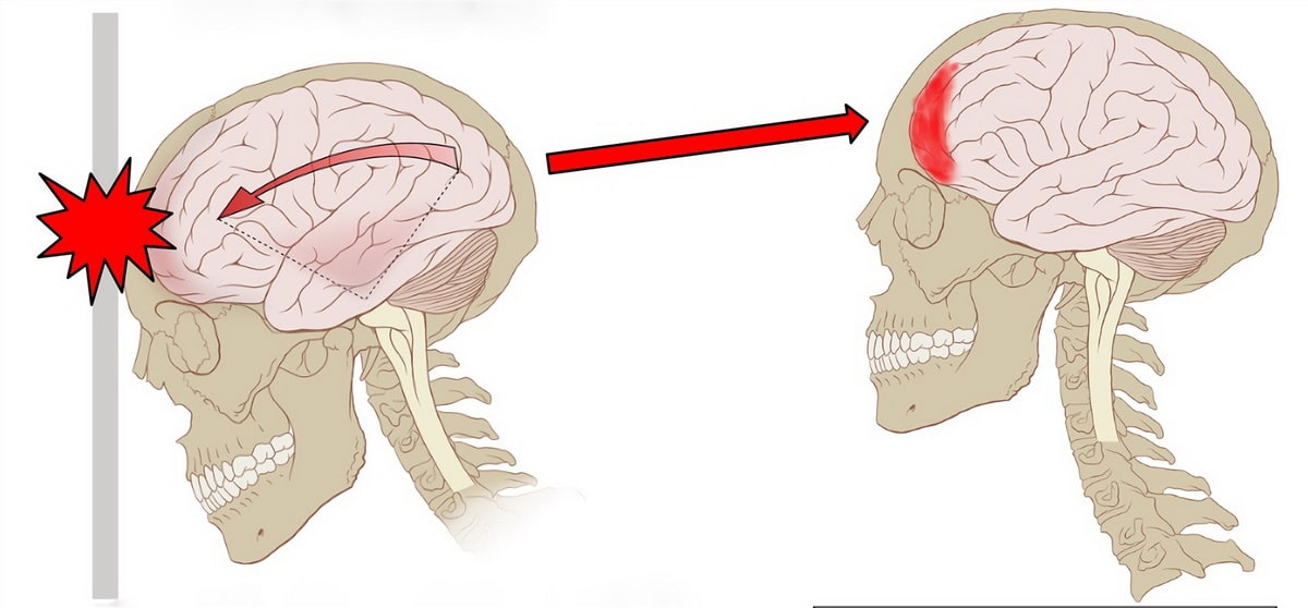 sotryasenie-golovnogo-mozga.jpg