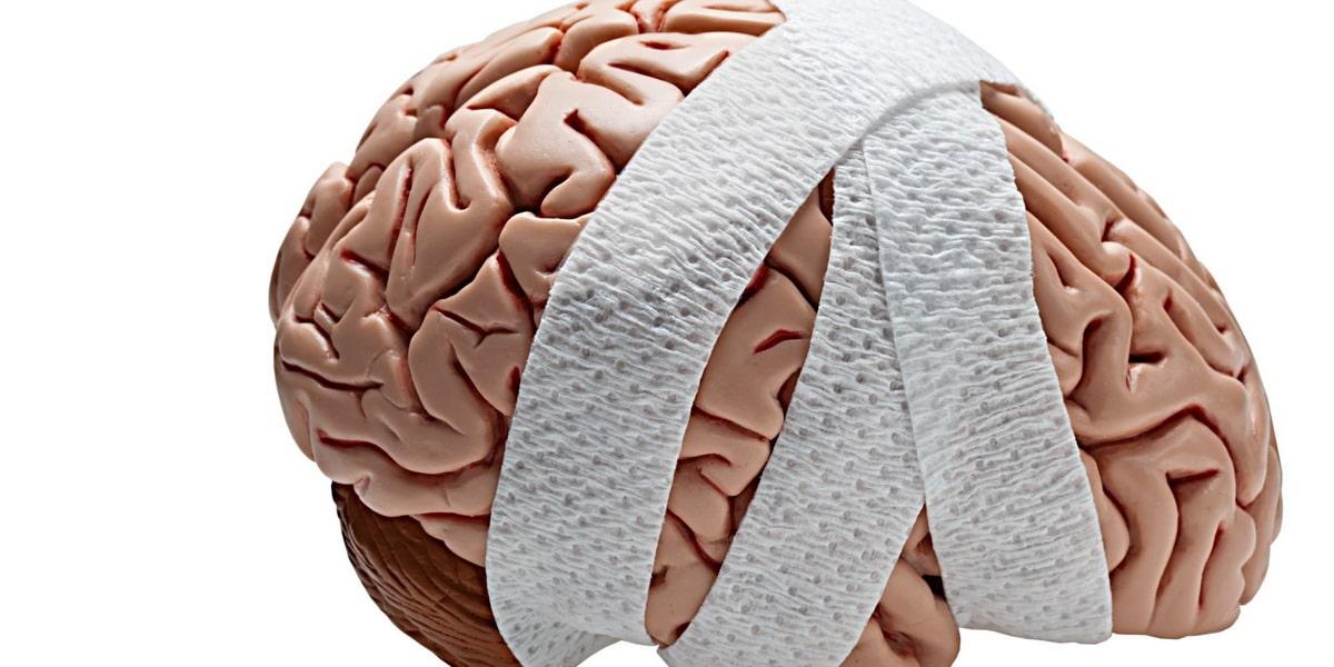 atrofiya-golovnogo-mozga.jpg