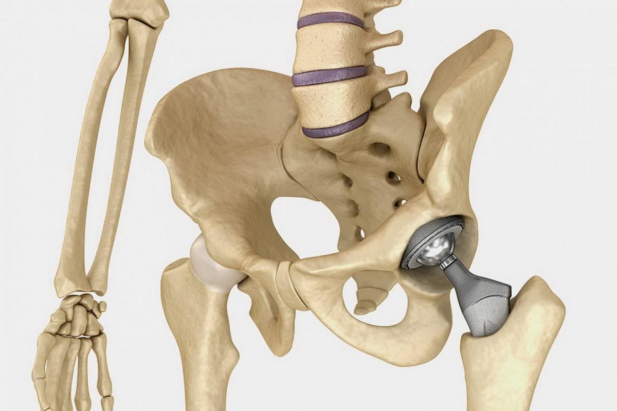 implant-perelom-shejki-bedra.jpg