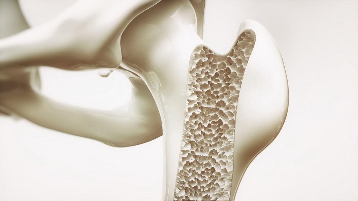 izbezhat-osteoporoza.jpg