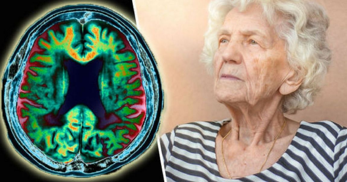 Причины заболевания Альцгеймер