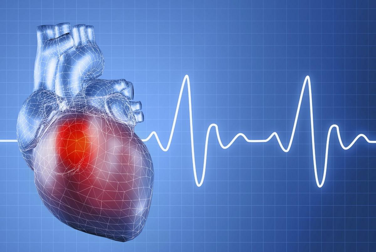infarkt-miokarda.jpg