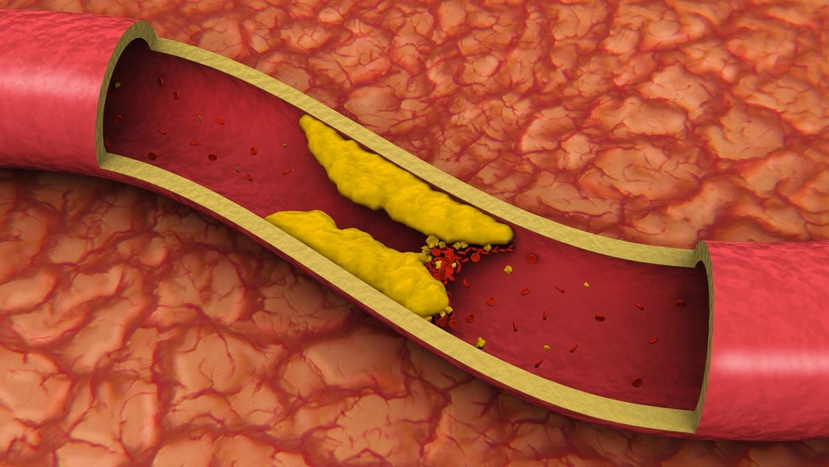 inkretiny-imeyut-svyaz-s-aterosklerozom.jpg