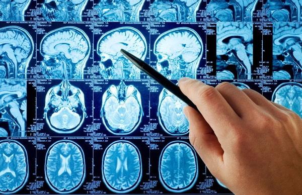 Клиническая картина болезни Гетингтона