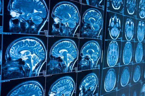 неврологические осложнения