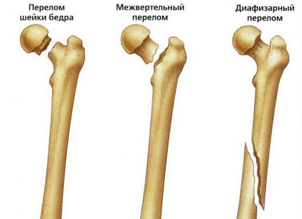 Травма бедренной части