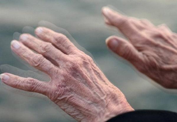 симптом болезни Паркинсона
